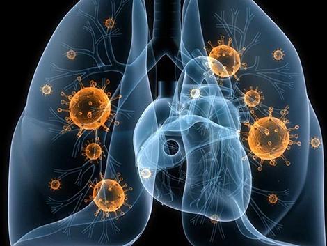 Por qué aumenta el cáncer de pulmón en no fumadores: polución y tabaquismo pasivo