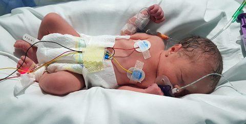 Uno de cada diez recién nacidos en España es prematuro